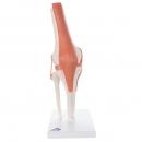 Flexibilní model kolenního kloubu
