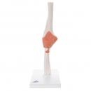 Flexibilní model loketního kloubu