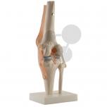 Lidský kolenní kloub