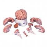 Lidský mozek s tepnami Deluxe